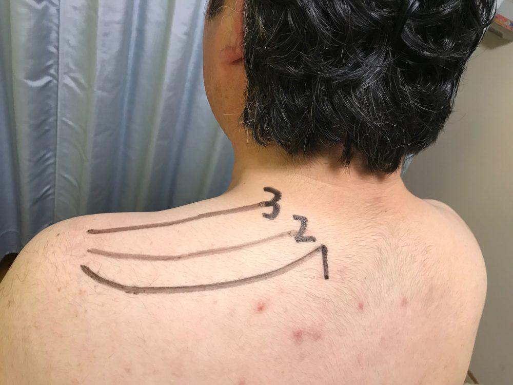 肩の1.2.3線